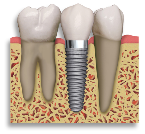 A cross section of our dental implants in Montesano, WA